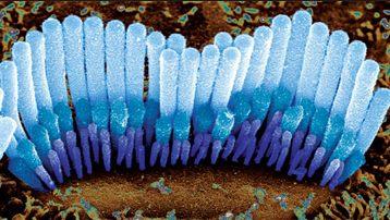 Cellules ciliées - Acouphènes solutions