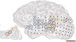 Points d'impacts des régions cérébrales activant des acouphènes